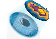 Aspheric-lasik-surgery-in-ambala