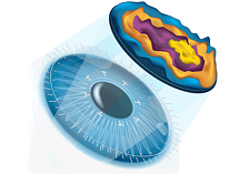 Aspheric-lasik-surgery
