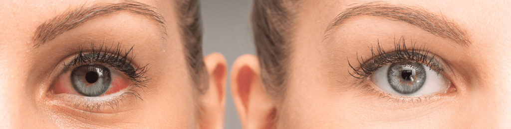 Know Everything About – Post LASIK Healing and Process